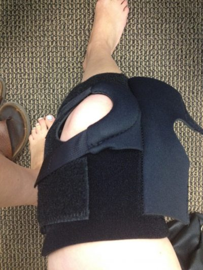 Knee brace for patellofemoral syndrome