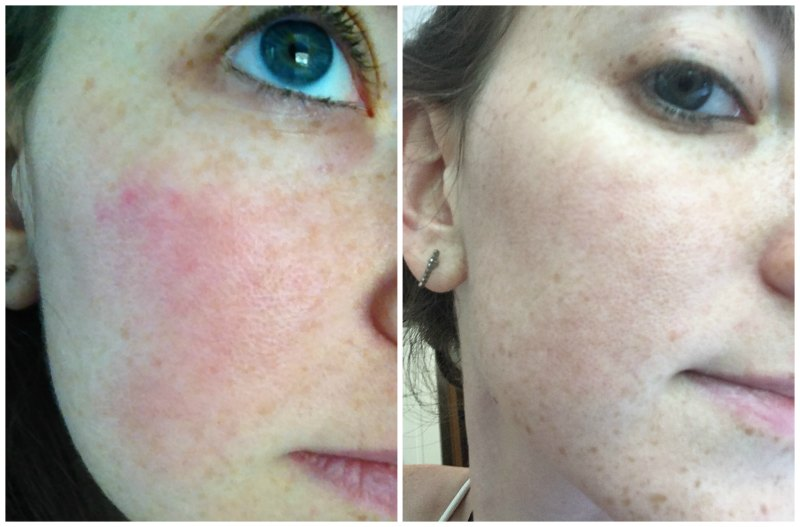 My rosacea before and after topical treatment