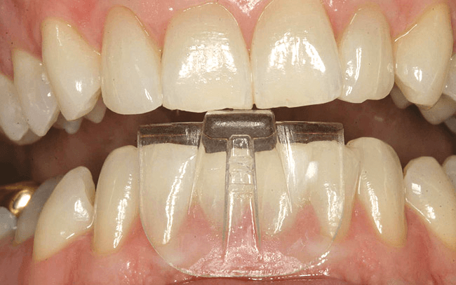 Bottom front teeth on dentil exposed