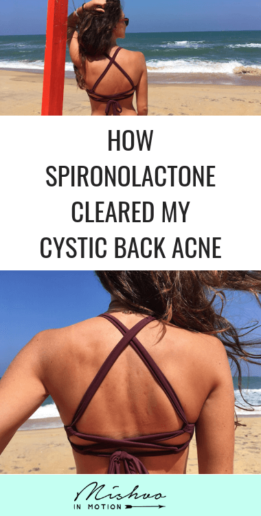 I struggled with cystic back acne for most of my life and tried a million different treatments. Spironolactone has been the best one so far with the most tolerable side effects. Click to read about my experience using spironolactone to treat cystic acne.